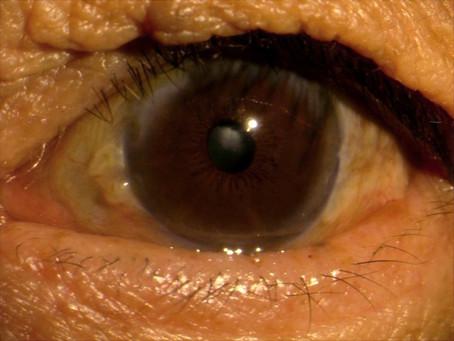 目頭が時々赤くなって痛い…瞼裂斑炎のお話