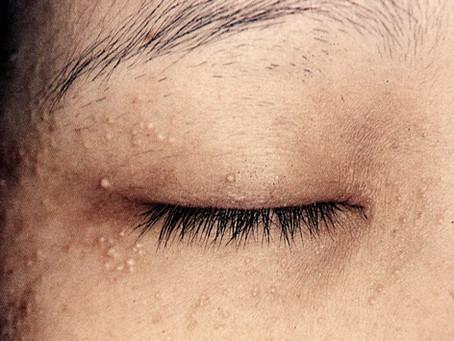 目の周りの白いプツプツ…。稗粒腫のお話