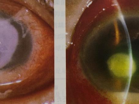 コンタクト使用中に充血したら?怖い角膜潰瘍の話