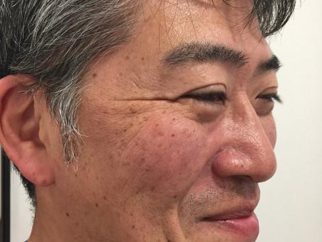 IPL光治療(シミ編)
