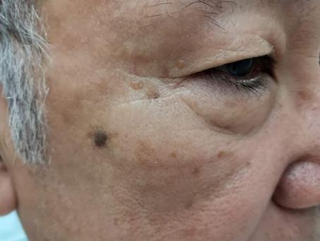 お顔の膨らんだシミ(脂漏性角化症)除去の経過について