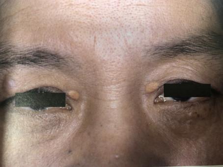 目の周りのぶつぶつシリーズ・黄色編