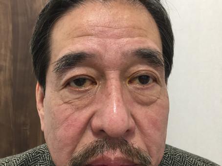 眼瞼下垂手術について