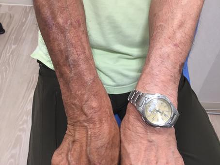 予防に勝る治療なし!夏の紫外線対策