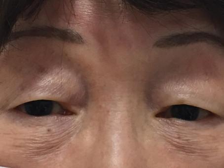 ✨眼瞼下垂手術でパッチリ👁✨