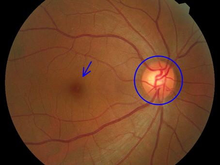 視神経乳頭小窩とピット黄斑症候群