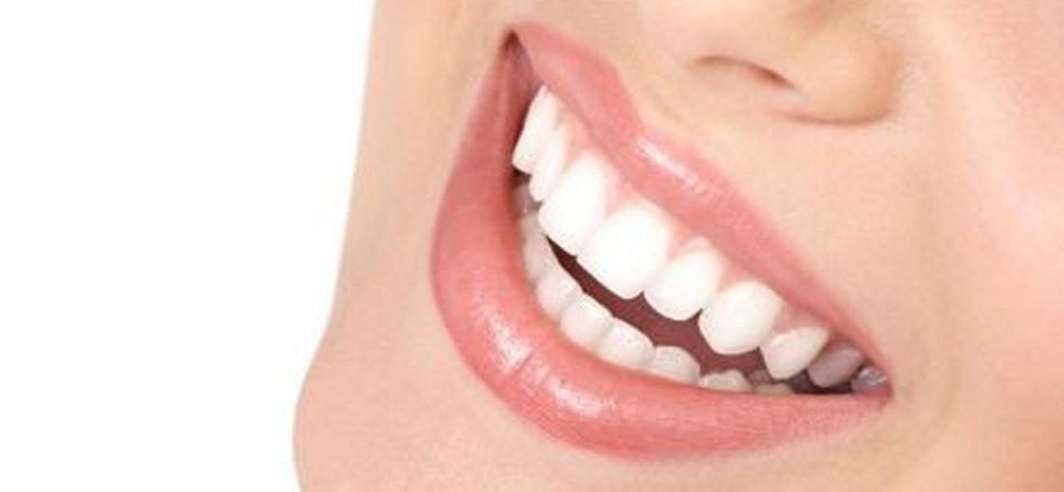 dentista maser, studio dentistico maser, studio dentistico trevignano, dentista trevignano