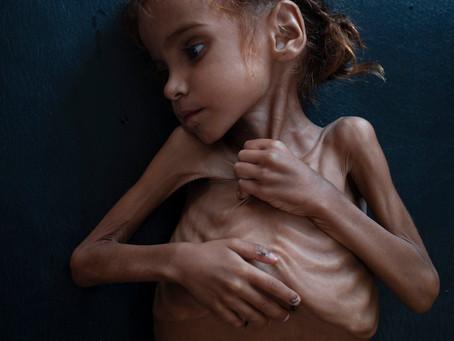 Йемен: гуманитарная катастрофа, которой не видно конца