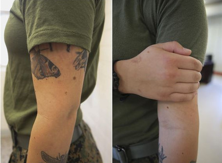 Saline Tattoo Removal and Why It's a Great Option