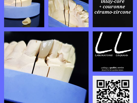 inlay-core en métal et couronne en céramo-zircone