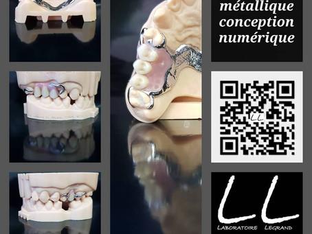 Châssis partiel métallique de conception numérique