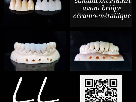 Simulation usinée en PMMA avant conception du bridge définitif en céramique sur chape métallique