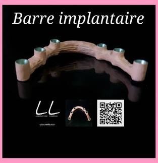 Barre implantaire transvissée sur 6 implants
