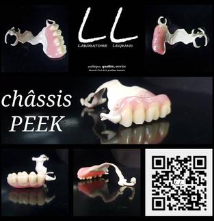 Châssis maxillaire en Polymère Haute Performance (PEEK)