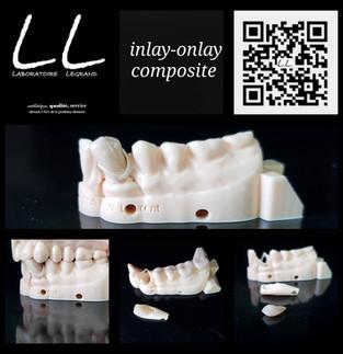 Inlay-Onlay en composite sous prothèse amovible, sur une empreinte optique