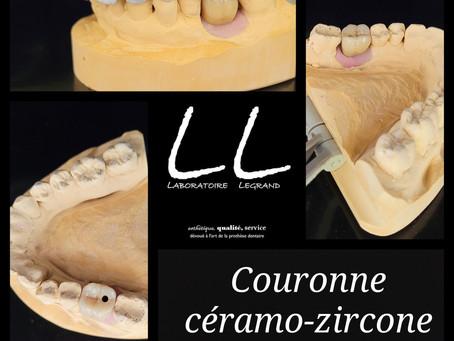Couronnes céramo-zircone transvissées sur implants