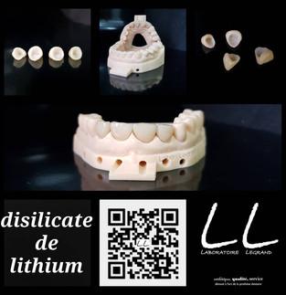 couronnes en disilicate de lithium