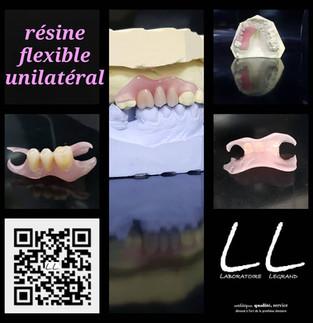 Prothèse partielle amovible en résine souple