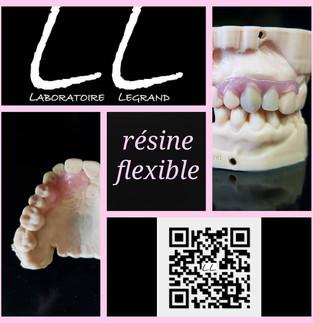 Prothèse Adjointe partielle unilatérale en résine flexible