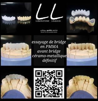 bridge céramo-métallique et sa simulation en PMMA