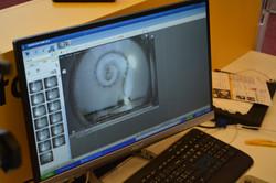 Electrodo dentro de la coclea