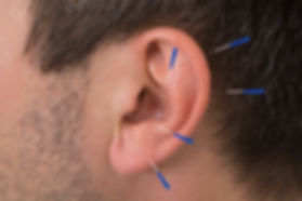 bigstock-Acupuncture-Needles-On-Ear-8031