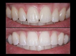 Dental-Bonding-Jackson-MS
