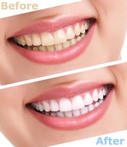 Teeth-Whitening-fremont-dentist-jaspreet-harika-dds