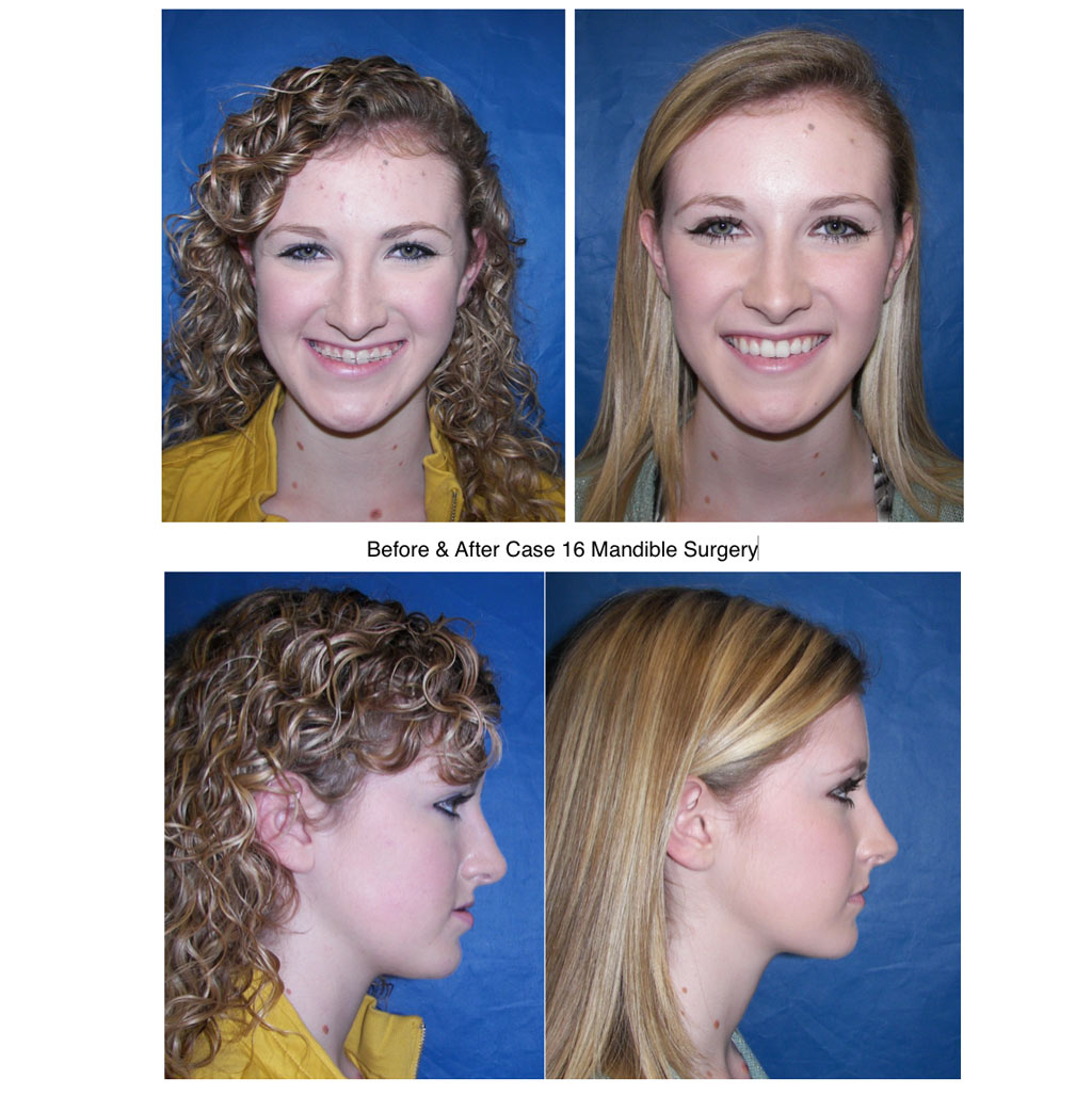 mandible-surgery-girl-before-and-after