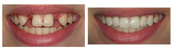 original_implant_before_after
