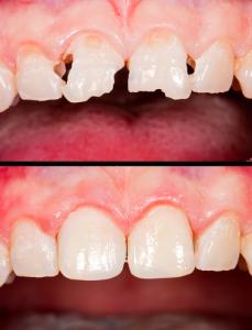 dental-crowns-before-after-fremont-dentist-229x300