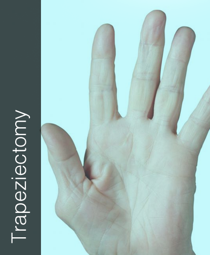 Fix My Hand Trapeziectomy