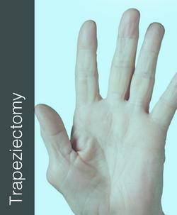Fix My Hand Trapeziectomy