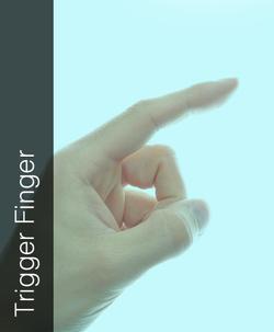 Fix My Hand Trigger Finger