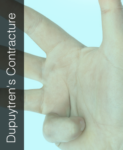 Fix My Hand Dupuytren's Contracture