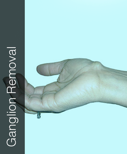 Fix My Hand Ganglion Removal