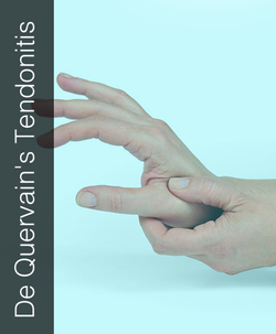 Fix My Hand Dequervains Tendonitis