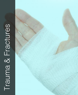 Fix My Hand - Trauma and Fracture
