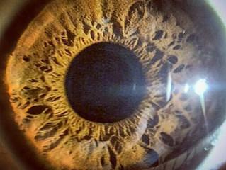 🔎 Você já ouviu falar de iridologia? 🔍
