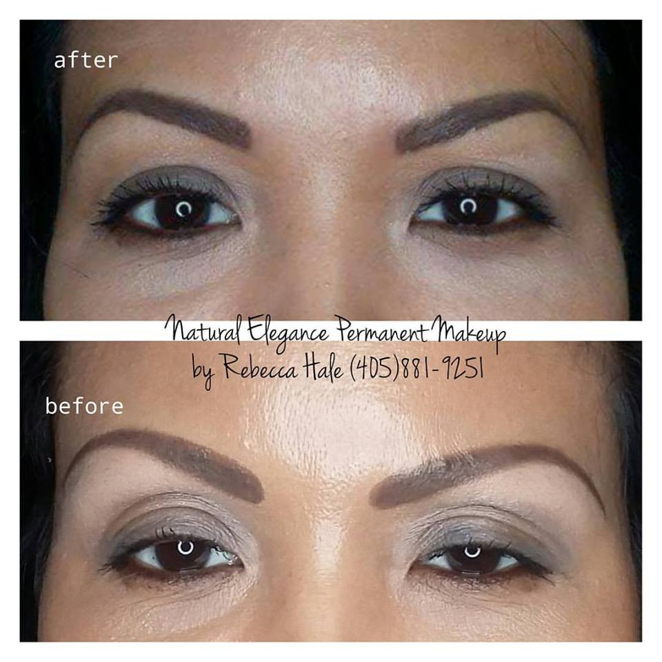 Eyebrow Tattoo Removal and Correction