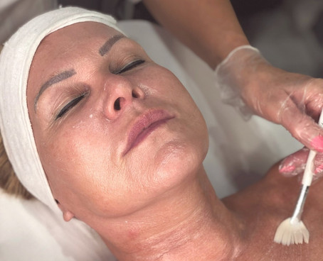 Maskne: How to Treat and Prevent Face Mask Breakouts
