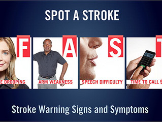 About Stroke