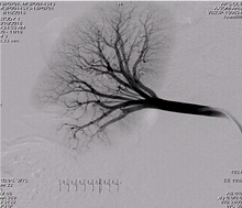 Angiogram post-GPX injection through microcatheter.