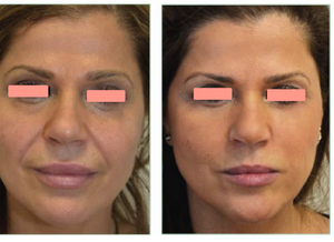 Nova Threads - No Surgery Face Lift