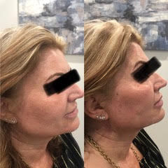 Before & After Threading.jpg