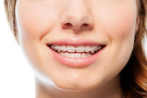 braces-made-from-wire-and-acrylic.jpg