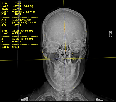 x-ray with specific analysis