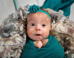 Adorable tiny three month old Trisomy 18 special needs infant girl with nasogastric tube f