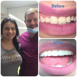 Emax all porcelain crowns