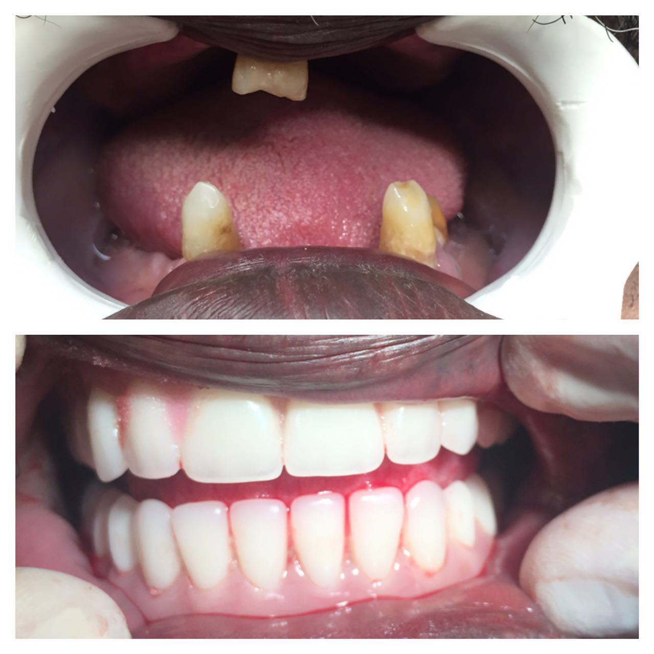Immediate full dentures